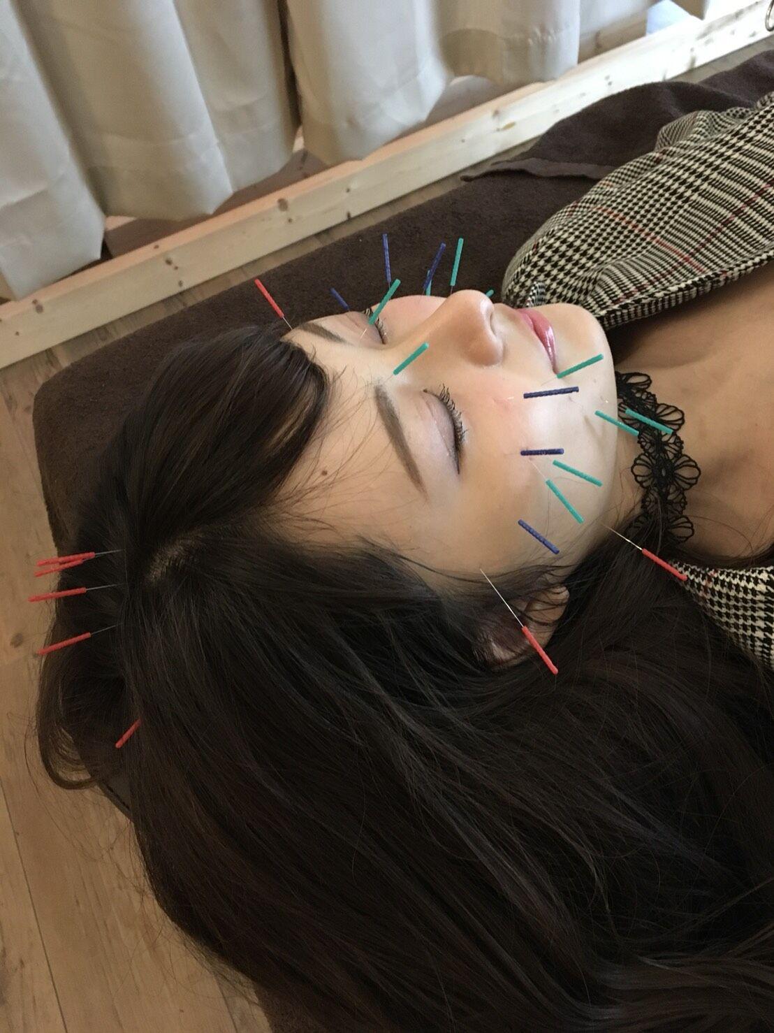小顔矯正は心斎橋から通いやすい【HARIS(ハリス)】に予約を!~鍼を使用した施術も可能~